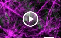 Metastatic cancer cells move towards blood vessel